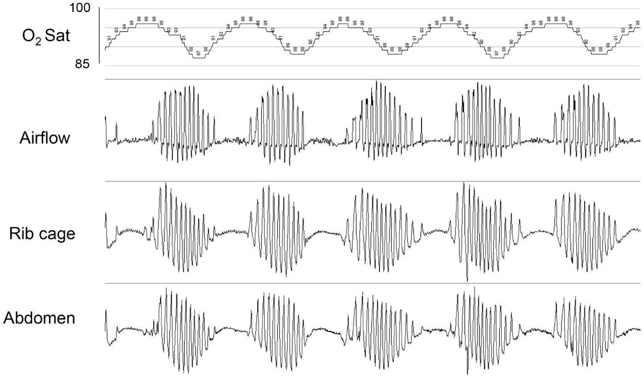 Graphical representation of  cheyne strokes respiration during polysomnography tracing showing cyclical periods of apnea and crescendo-decrescendo hyperventilation.