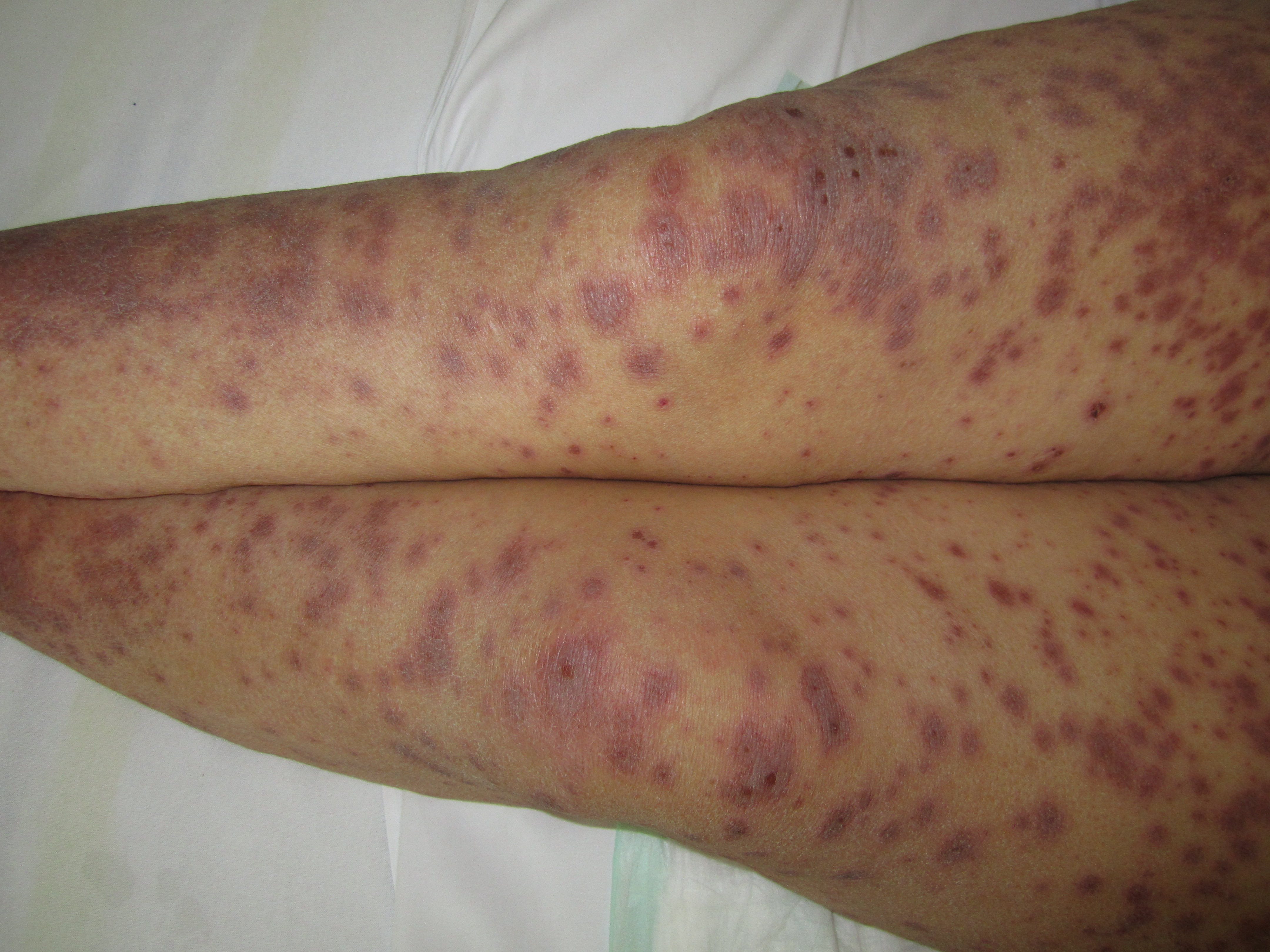 Erythematous, Purpuric, Macules, targetoid lesions, Stevens Johnson Syndrome