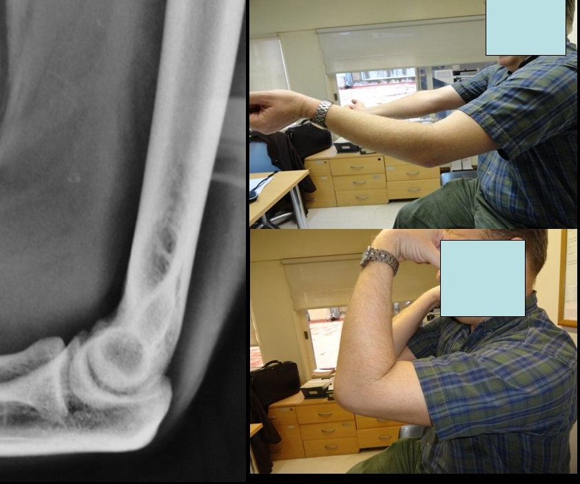 Elbow, Stiffness, Simple Dislocation