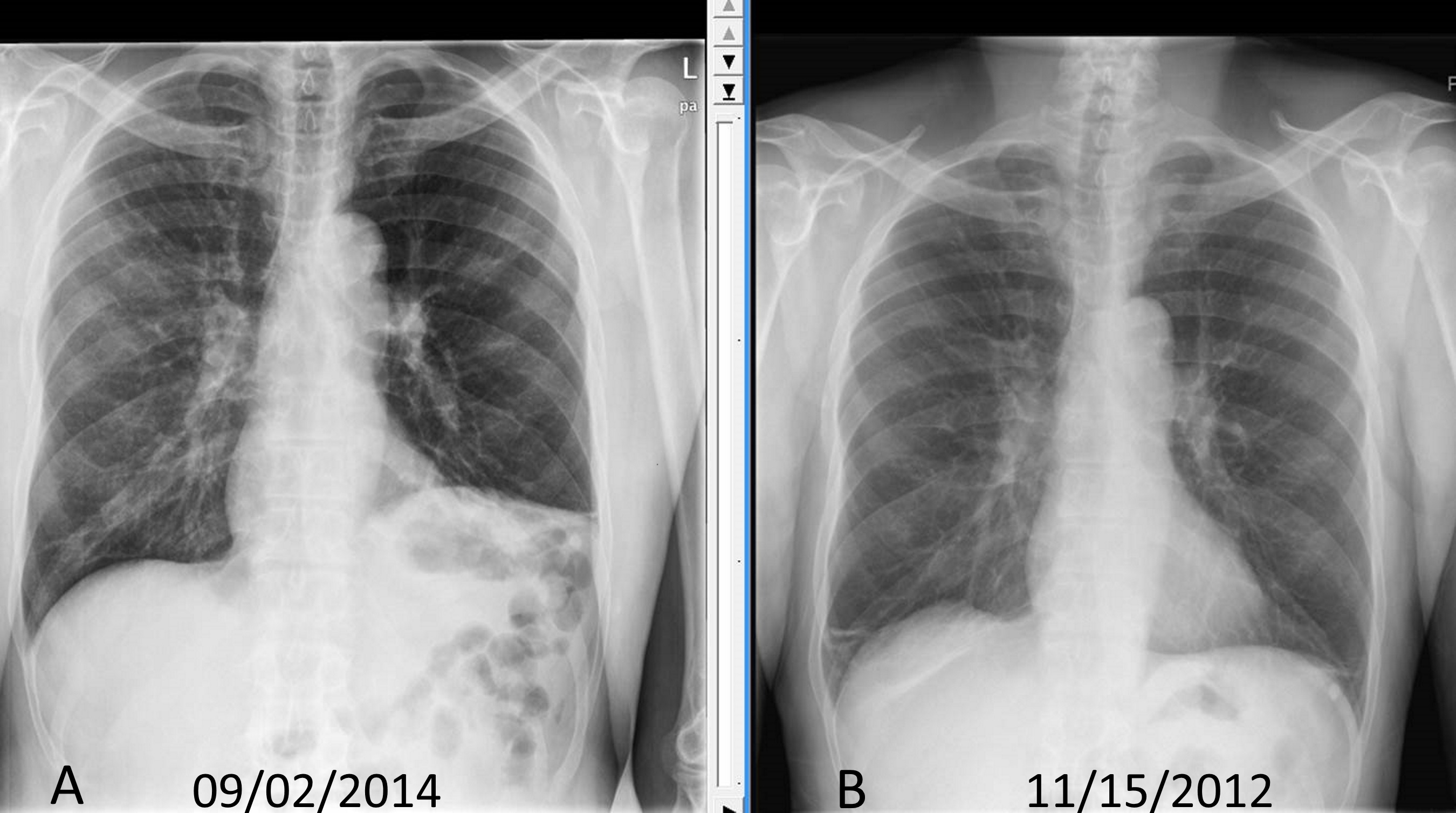 Chest x ray showing elevated diaphragm compared to chest x ray done two years back