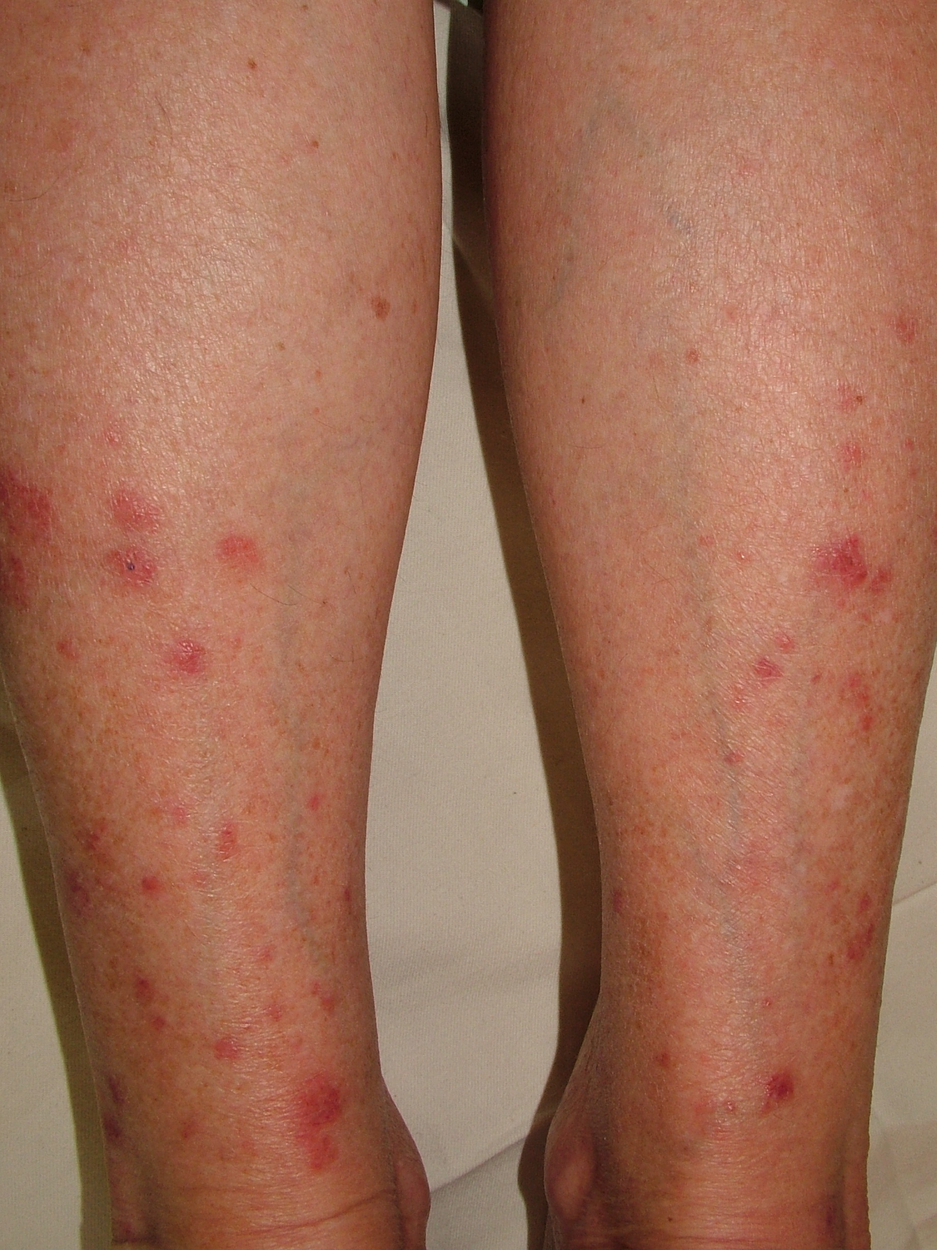 Papular polymorphic light eruption on lower legs in female
