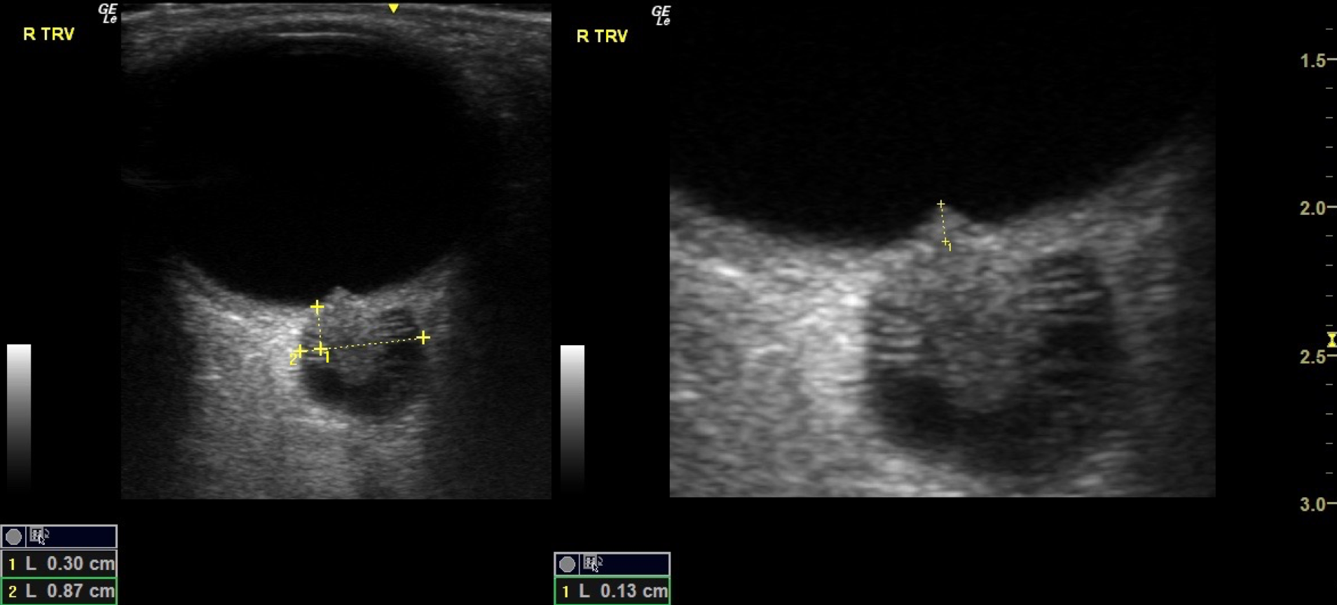 Widened optic nerve sheath and papilledema (ultrasound image)