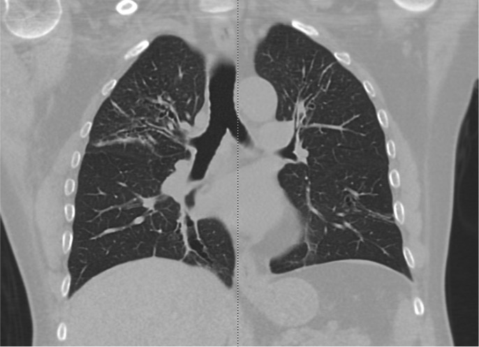 Chest CT showing upper lobe bronchiectasis in a patient with bronchial asthma, consistent with ABPA