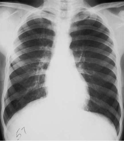 upper lobe pneumothorax