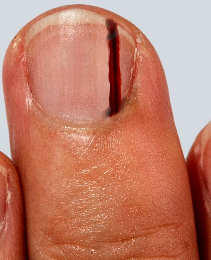 subungual melanoma of the middle finger
