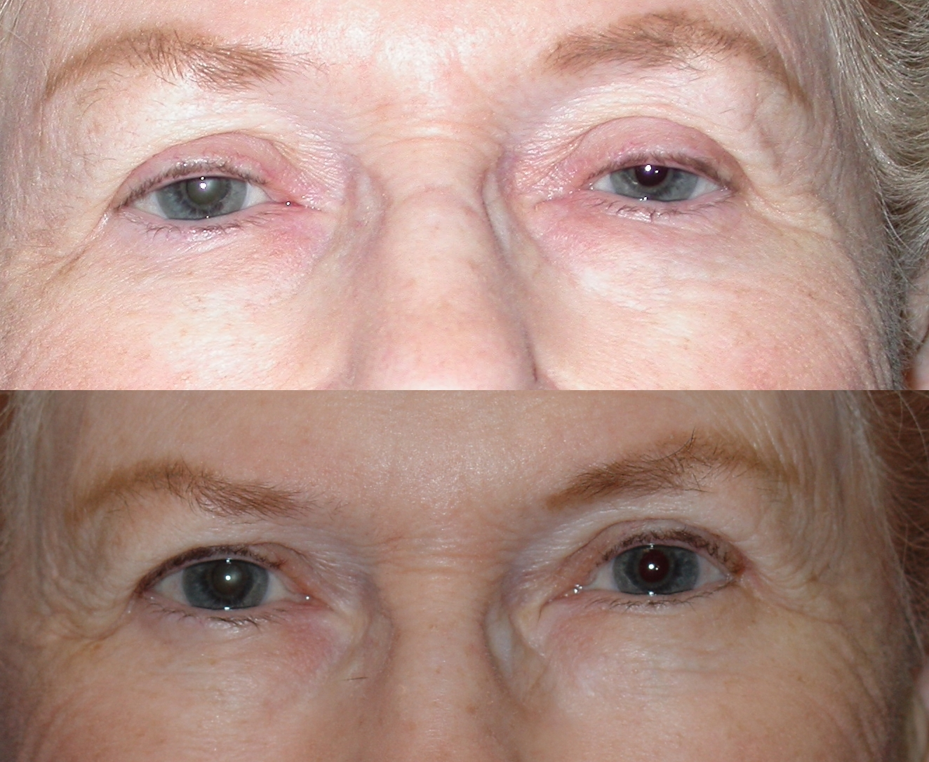 before and after ptosis/blepharoplasty