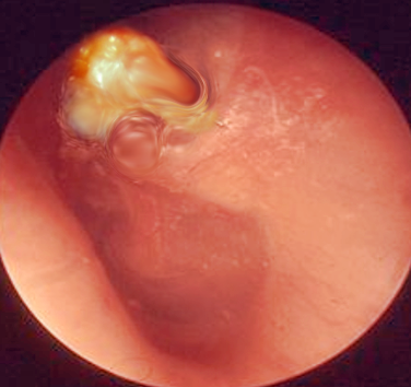 Cholesteatoma of the right ear