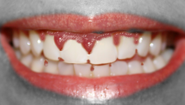 gingival overgrowth from a medication