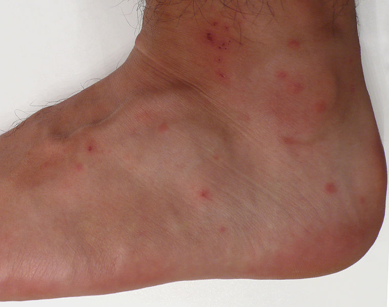Dermatological findings from multiple chigger bites
