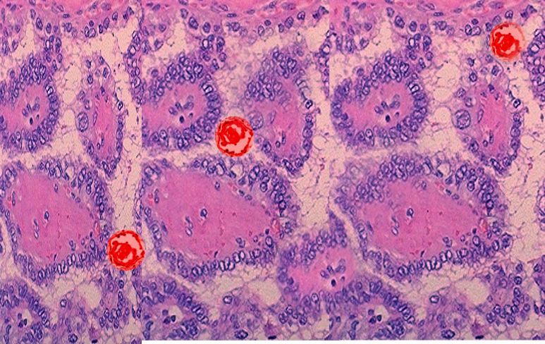 Papillary thyroid cancer psammoma body