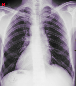 dextrocardia chest x-ray