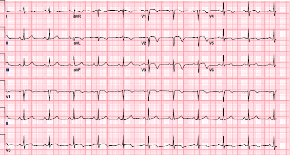 ECG demonstrating the second type of pattern associated with Wellens' syndrome. In leads V2-V3, the T waves are deeply inverted, typical of Type-B T waves. As discussed, Type-A T waves often evolve into Type-B T waves, which is what occurred in this patient.