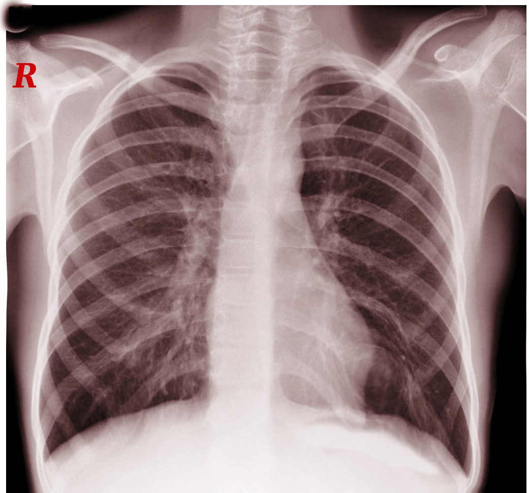 cervical rib on chest x-ray