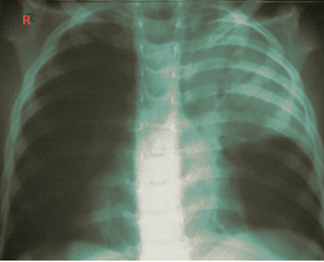 post op atelectasis chest x-ray