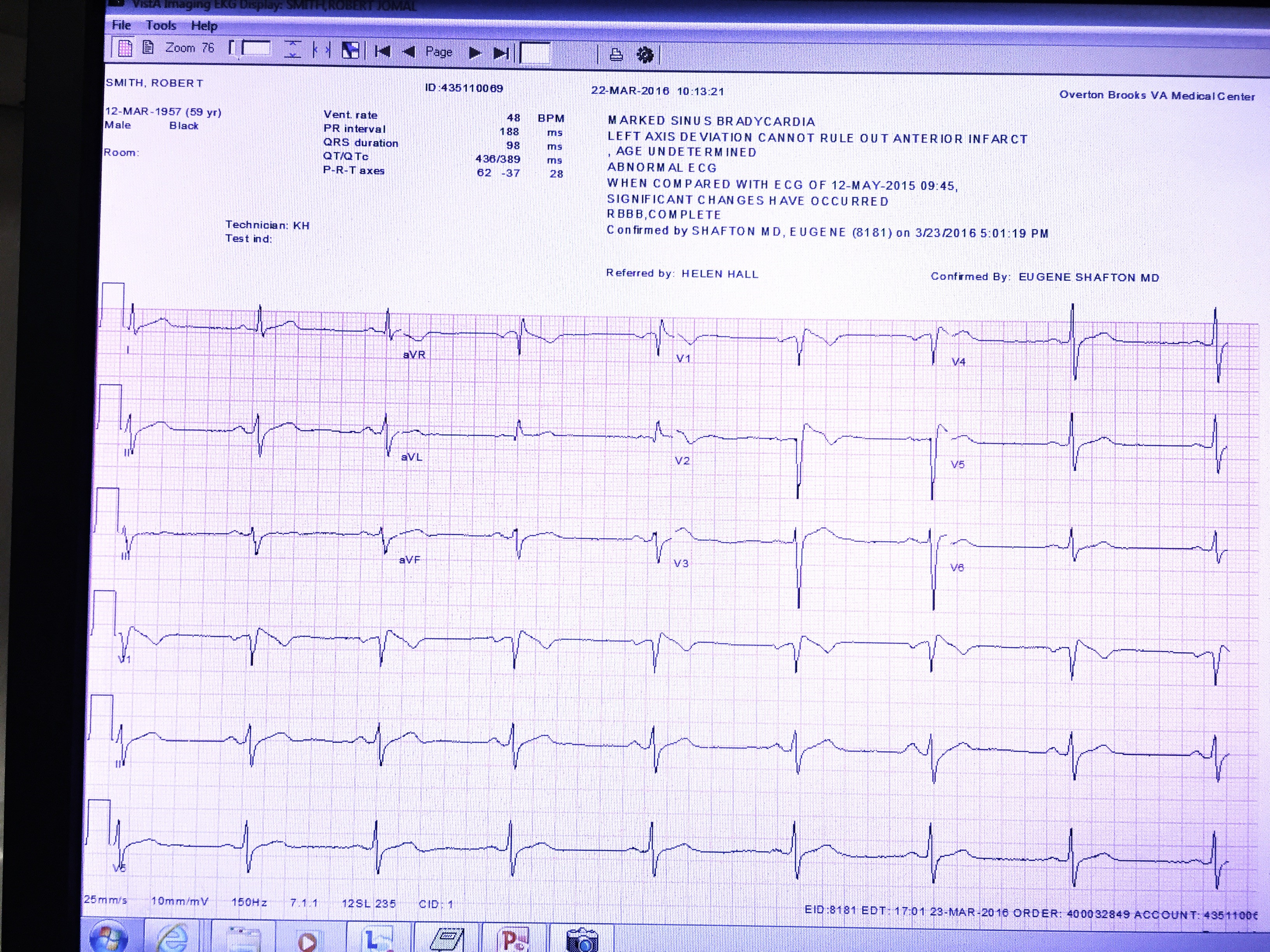 Electrocardiogram of patient with syncope.