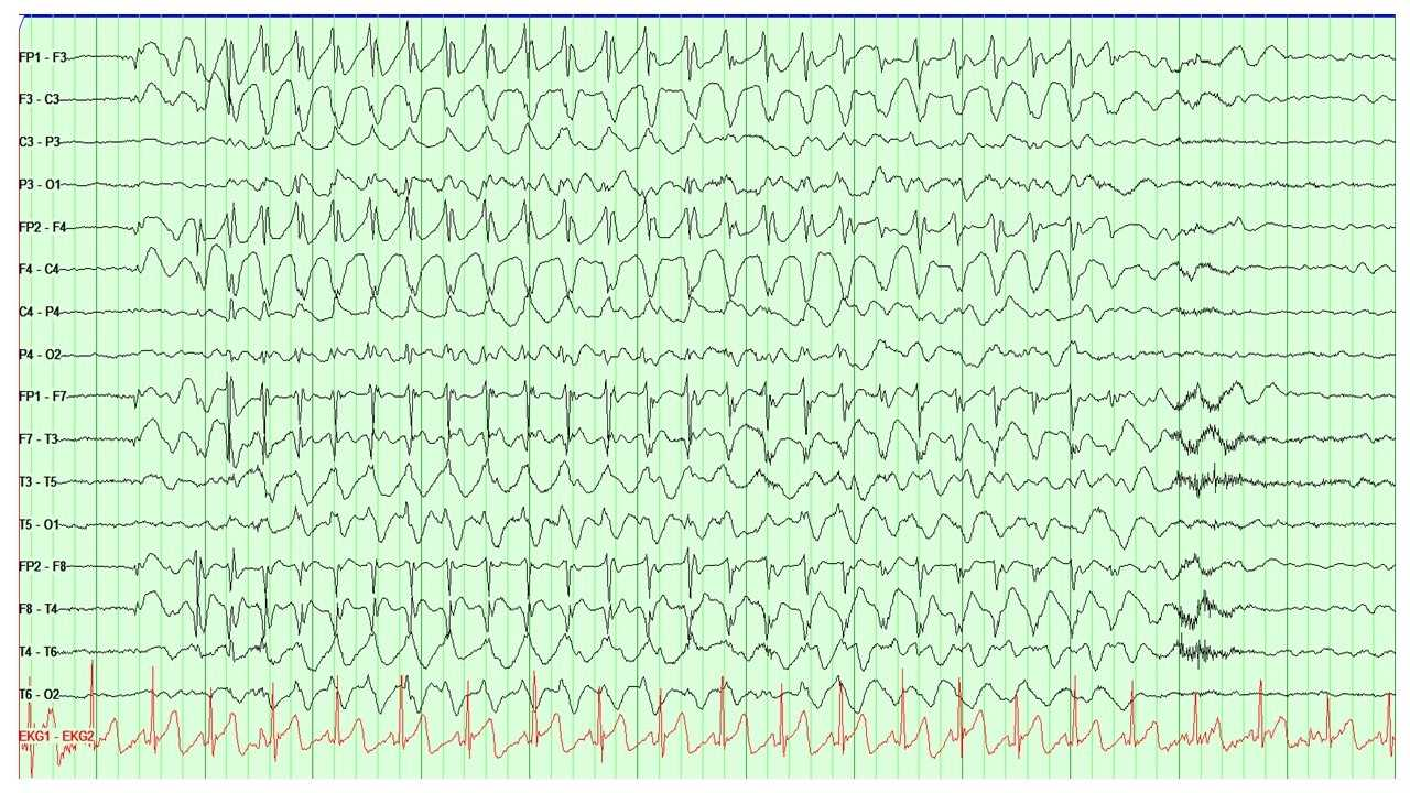 EEG showing the characteristic 3Hz spike and wave discharges seen in absence epilepsy
