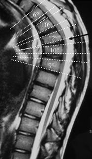 Sagittal MRI demonstrating anterior wedging of >/= 5 degrees in 3+ adjacent vertebral bodies, as described in the diagnostic criteria for Scheuermann's kyphosis.