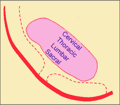 The picture above illustrates the somatopic arrangement of the spinothalamic tract in the spinal cord