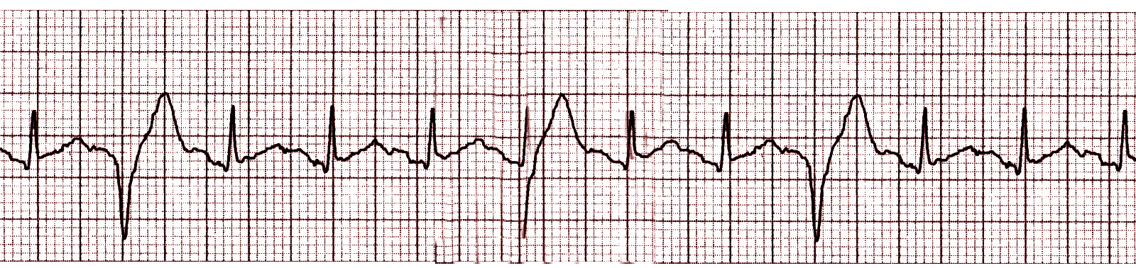 Premature Ventricular Contraction (PVC) Article - StatPearls