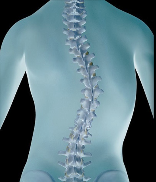 scoliosis of the spine