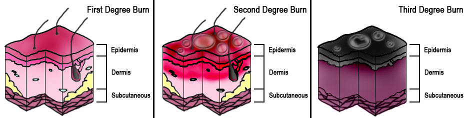 Diagram of Burn Degrees