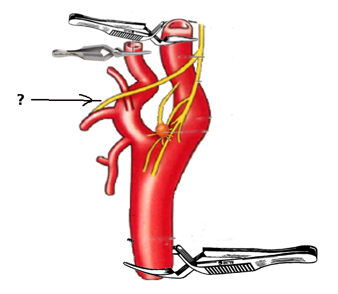 Carotid artery and nerves