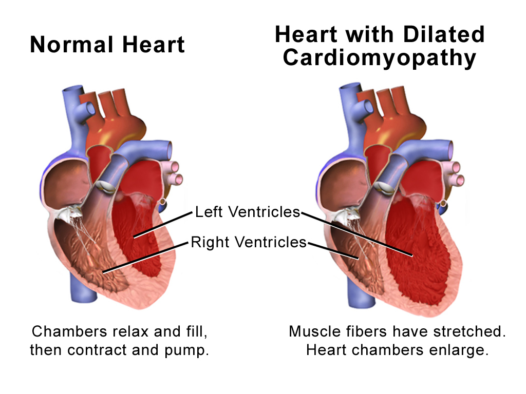 Cardiac Dilated Cardiomyopathy