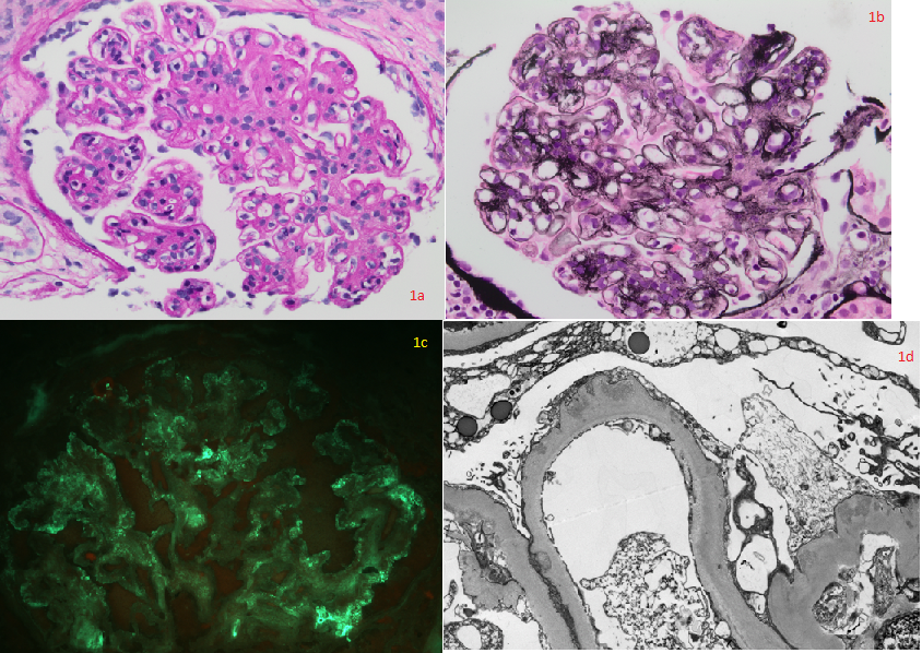 "Fig. 1a (PAS x400) and 1b (Jones methenamine silver x400): Hyperlobulated glomeruli showing mesangial and segmental endocapillary hypercellularity, mesangial matrix expansion, and segmental duplication of basement membranes with mesangial cell interposition.  Some peripheral capillary loops appear ""wire loop""-like.
