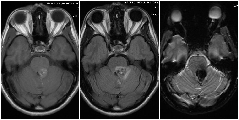 "Magnetic resonance imaging depicts a cavernous malformation in the left middle cerebellar peduncle of a patient who presented with right sided facial numbness and ataxia. Varying signal intensities on T1- and T2-weighted sequences and detection of blood on susceptibility weighted sequences (left, middle, and right images, respectively) that are characteristic for a cavernoma are seen. Imaging findings consistent with a Zabramski type 2 cavernoma with mixed signal intensities on both type 1 and type 2, giving it the ""popcorn appearance""."