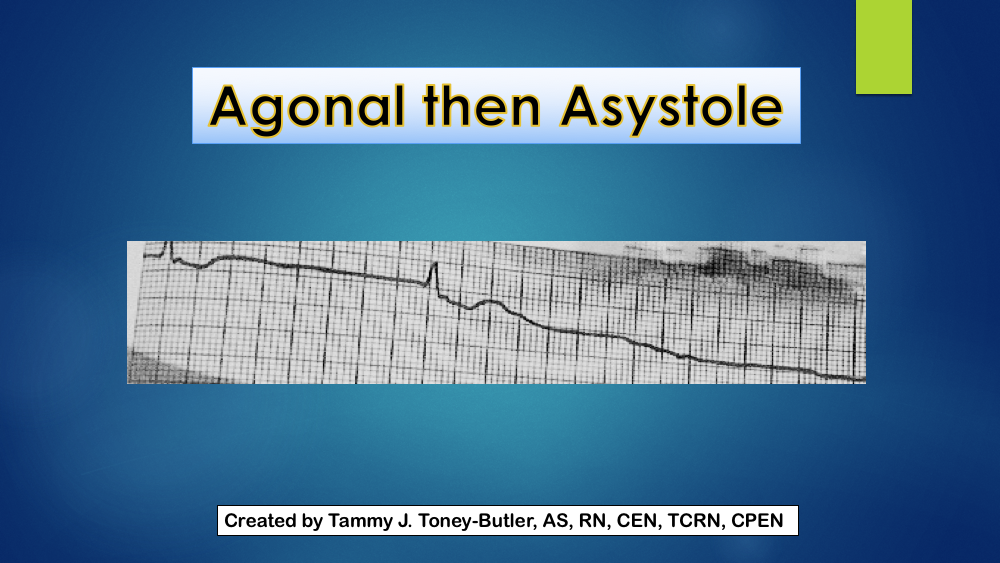 Agonal then Asystole Cardiac Rhythm Strip