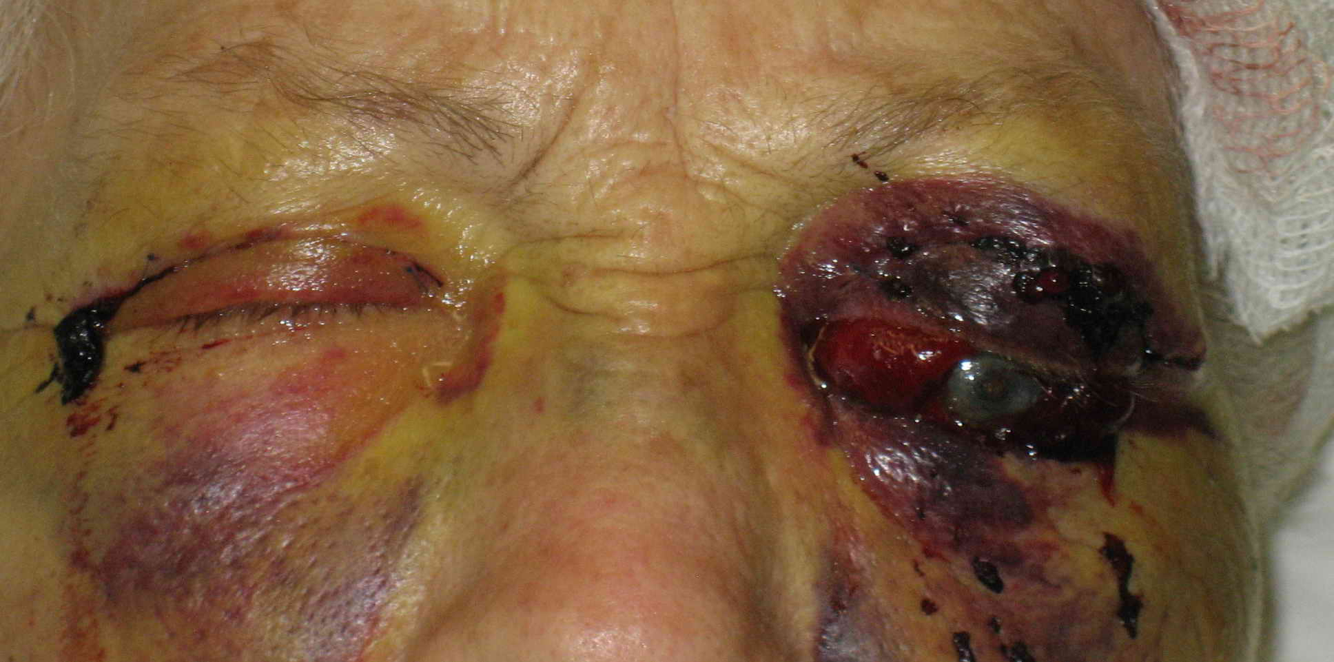 Patient developed severe pain in the left eye and orbit after uneventful upper blepharoplasty. Patient was not seen and examined until the following morning when this photograph was taken. Patient has no perception of light in the left eye. A canthotomy, cantholysis and evacuation of orbital hemorrhage did not help this patient as this should have been performed much earlier.