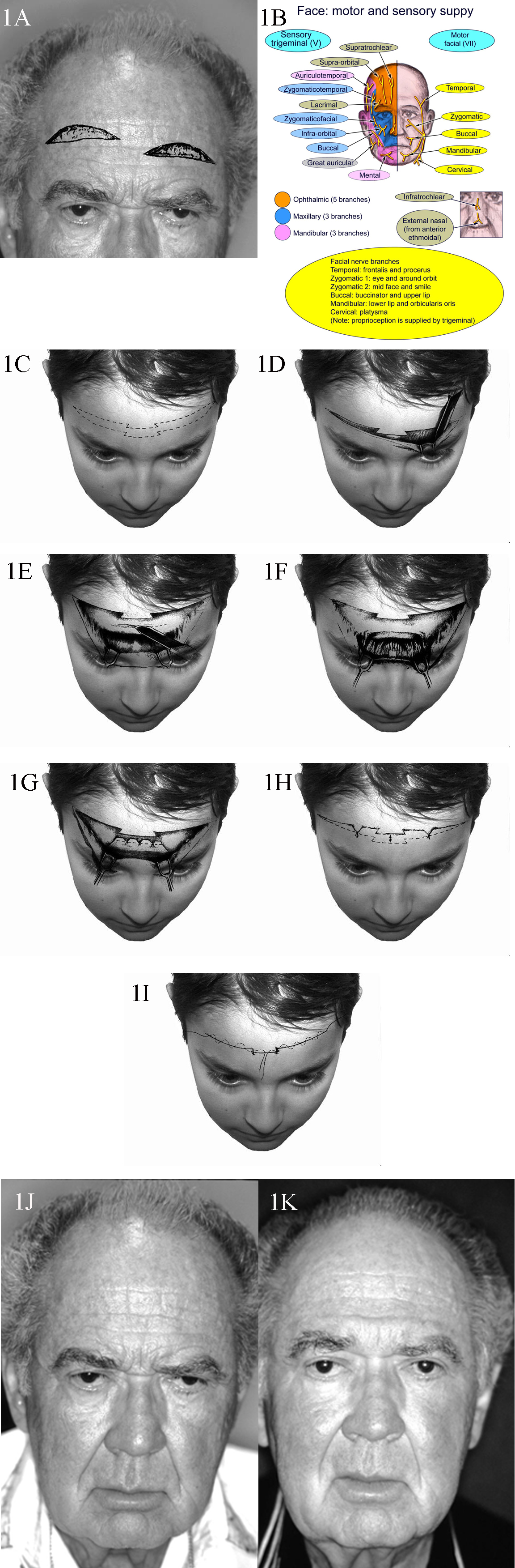 1A. Patient with typical upper lid ptosis and severe brow ptosis. Incisions for midforehead lift may be staggered as shown here to prevent a long horizontal scar. 1B. Sensory and motor nerve supply of the face. 1C. Transverse forehead incisions may be staggered or be broken up as shown to improve the final scar. 1D. Dissection performed in the subcutaeneous plane. 1E. Transverse incisions are made in the galea to access the corrugator and procerus muscles. These incisions are kept in the middle to prevent injury to the supraorbital nerve branches. 1F. Once exposed, the corrugator and procerus muscles are attenuated. 1G. The galea is shortened as desired and sutures placed. 1H. Elevation of the cutaneous structures is obtained and relevant trimming performed. 1I. Meticulous subcuticular closure is performed with no tension on the skin edges. 1J. A 68-year-old man with markedly overactive corrugator and procerus muscles. 1K. A reasonable elevation of his brows has been achieved.