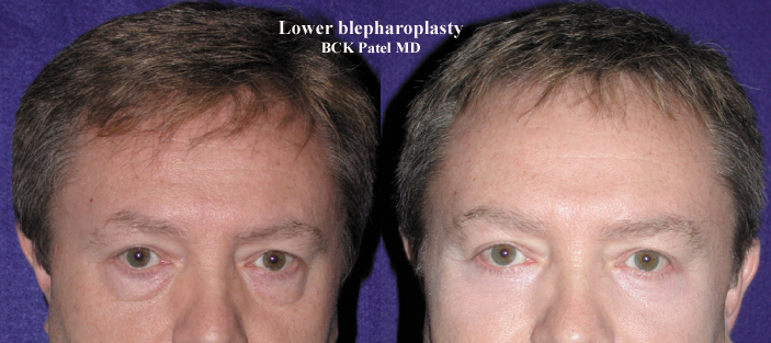 Before and after photographs of lower trans conjunctival blepharoplasty with lateral canthal tightening and CO2 laser application to the skin, together with fat transposition over the inferior orbital rim.