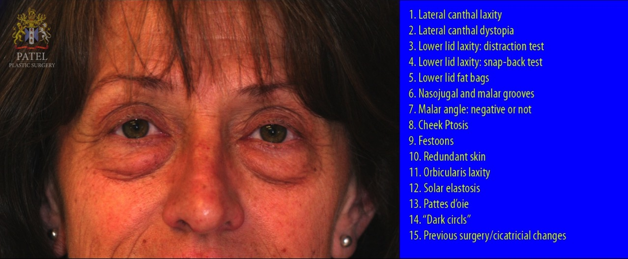 Assessment of lower eyelids prior to lower blepharoplasty needs to be systematic and complete. Each of these anatomical structures and assessments is discussed in the article.