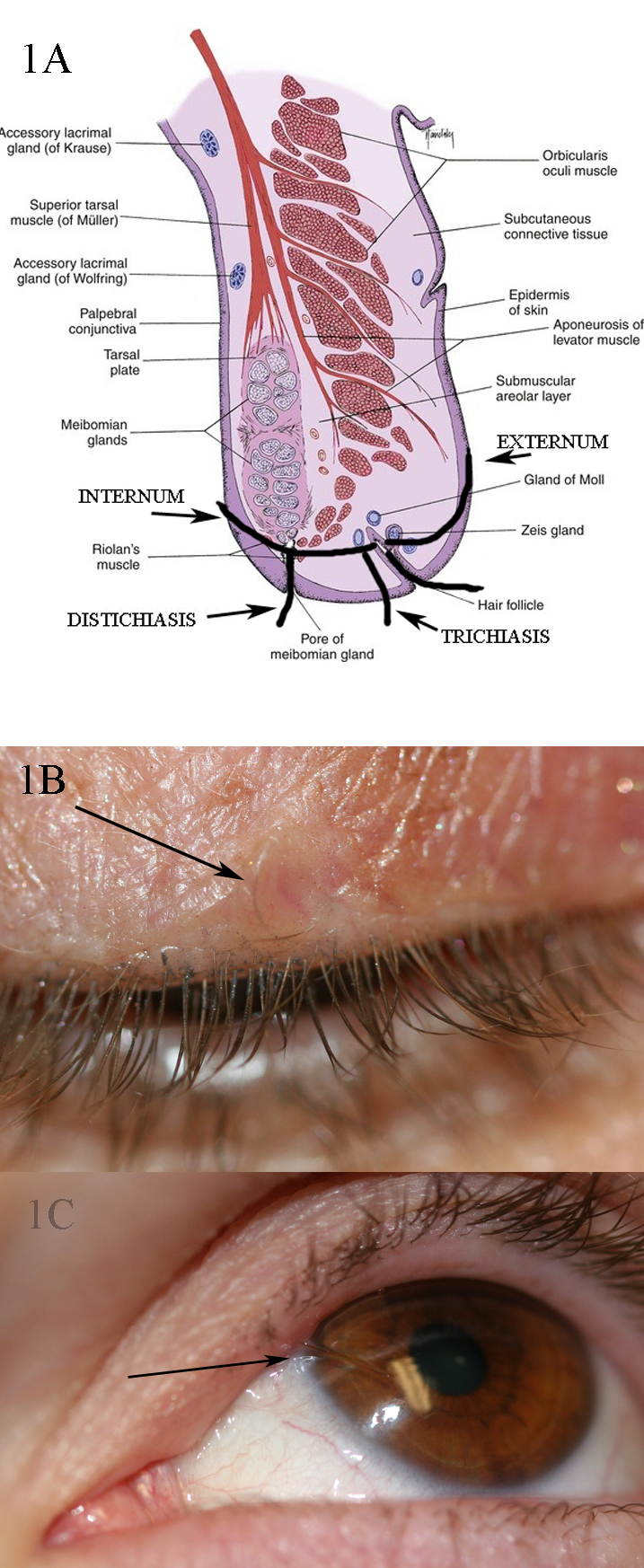 1A: shows the different orientations of lashes in trichiasis, distichiasis, cilia incarnata internum and cilia incarnata externum.