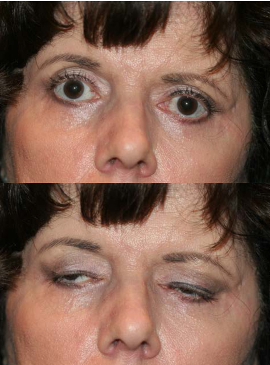 Lagophthalmos: patient with over-aggressive upper and lower blepharoplasty with shortage of skin and over-aggressive removal of orbicularis muscle. The lagophthalmos seen is worse when the patient is asleep than what is seen when the patient is awake and closing the eyelids.