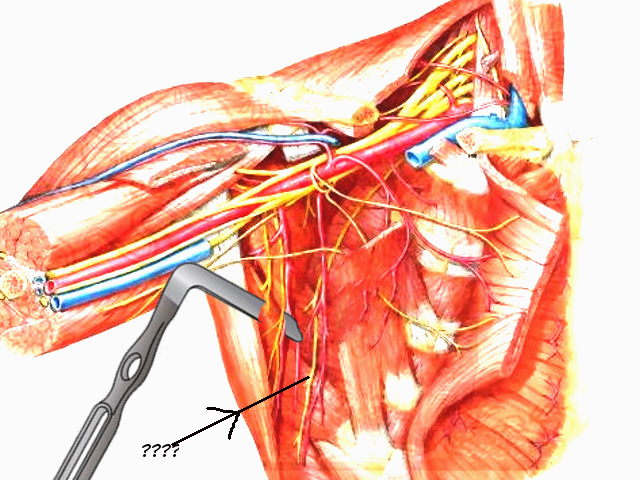 Long thoracic nerve