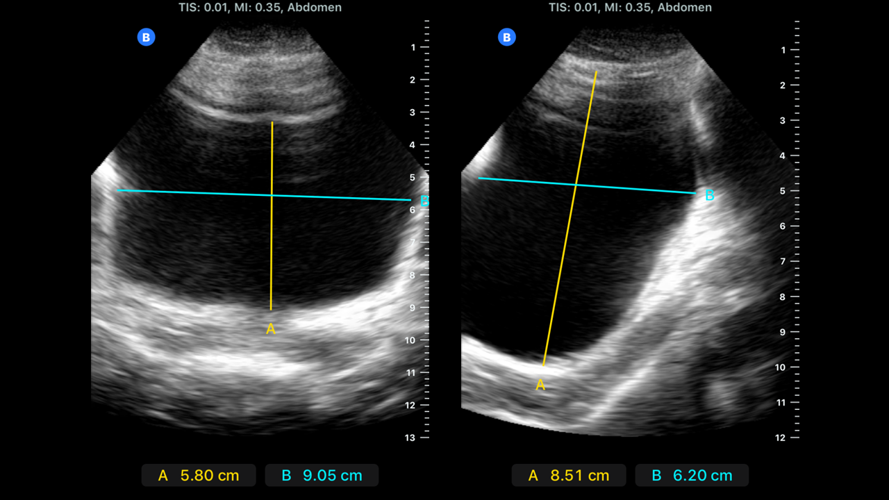 Bladder dimensions in sagittal and transverse views measured using ultrasound