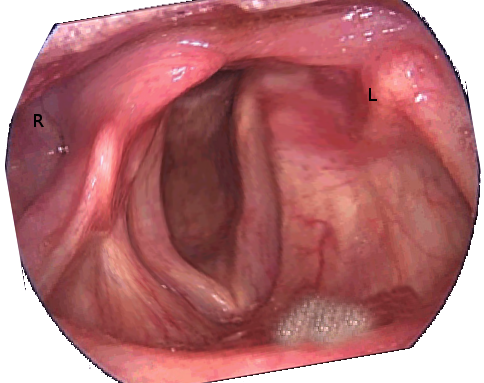 Unilateral vocal cord paralysis after a left parathyroidectomy