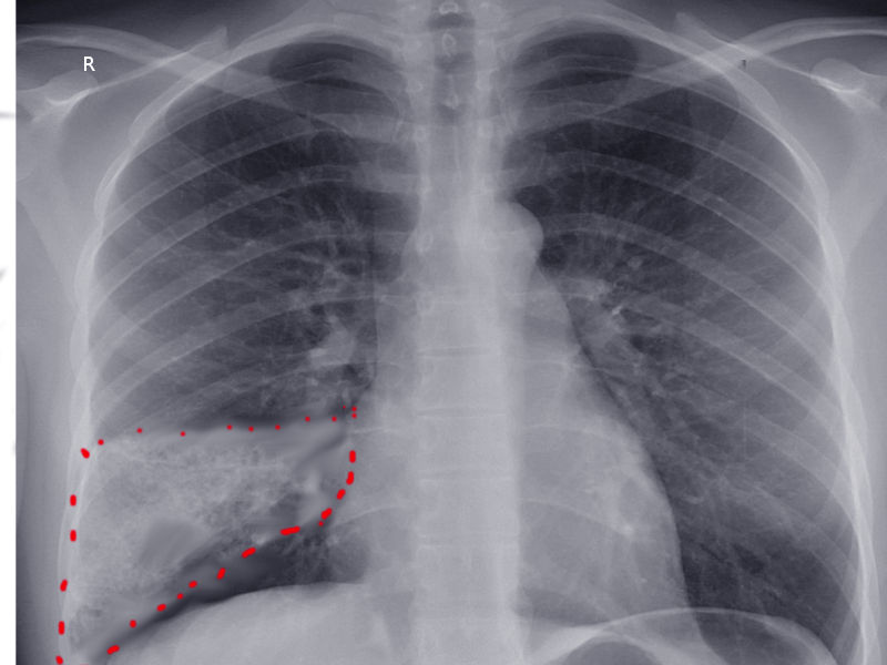Wedge shape pulmonary infarction seen on AP chest x-ray.