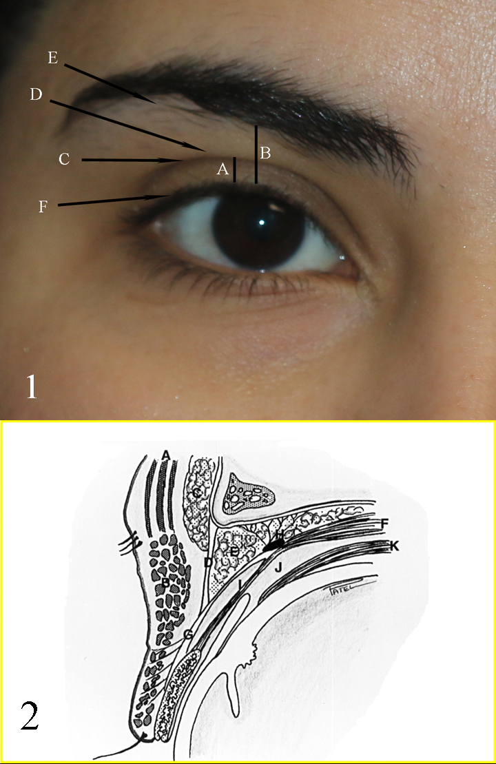 Fig 1: A: upper eyelid platform; B: Brow to Lid margin distance; C: Upper eyelid crease; D: Upper eyelid fold; E: Brow fatpad; F: Eyelid margin and eyelash curve