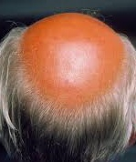 Photo showing male-pattern androgenetic alopecia