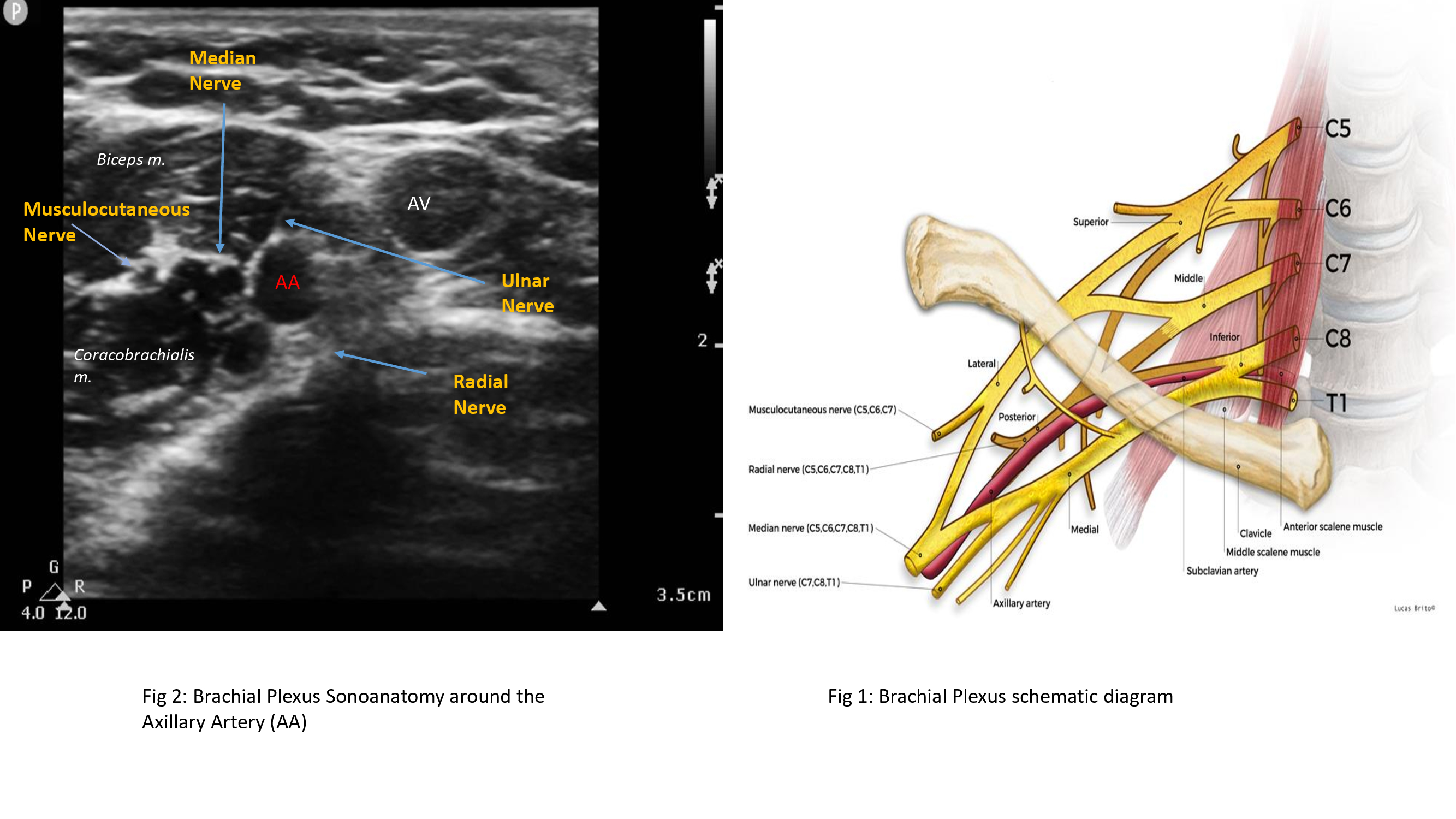 Fig 1: Schematic diagram of brachial plexus