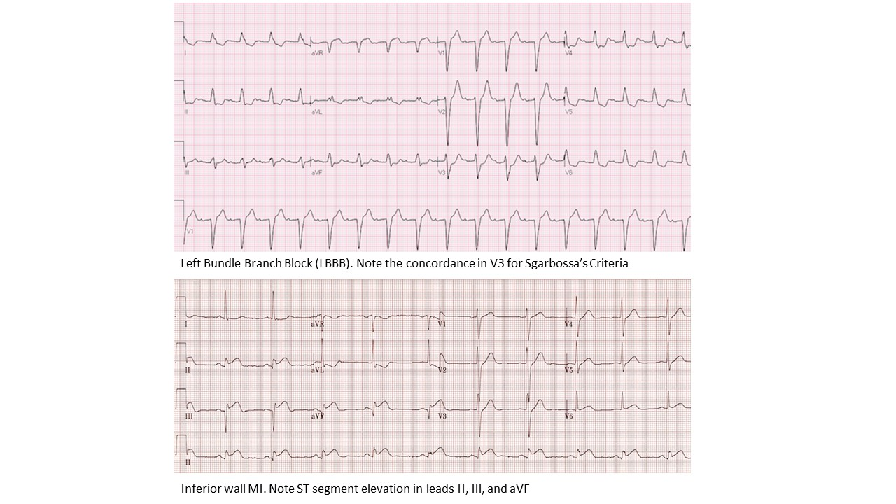 ECG- Left Bundle Branch Block and inferior wall MI