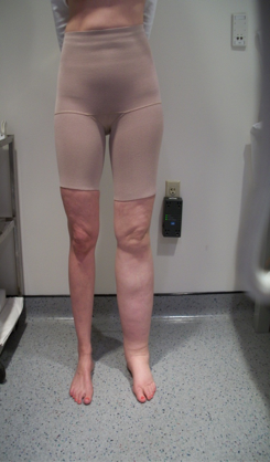 Secondary Lymphedema related to cervical cancer treatment