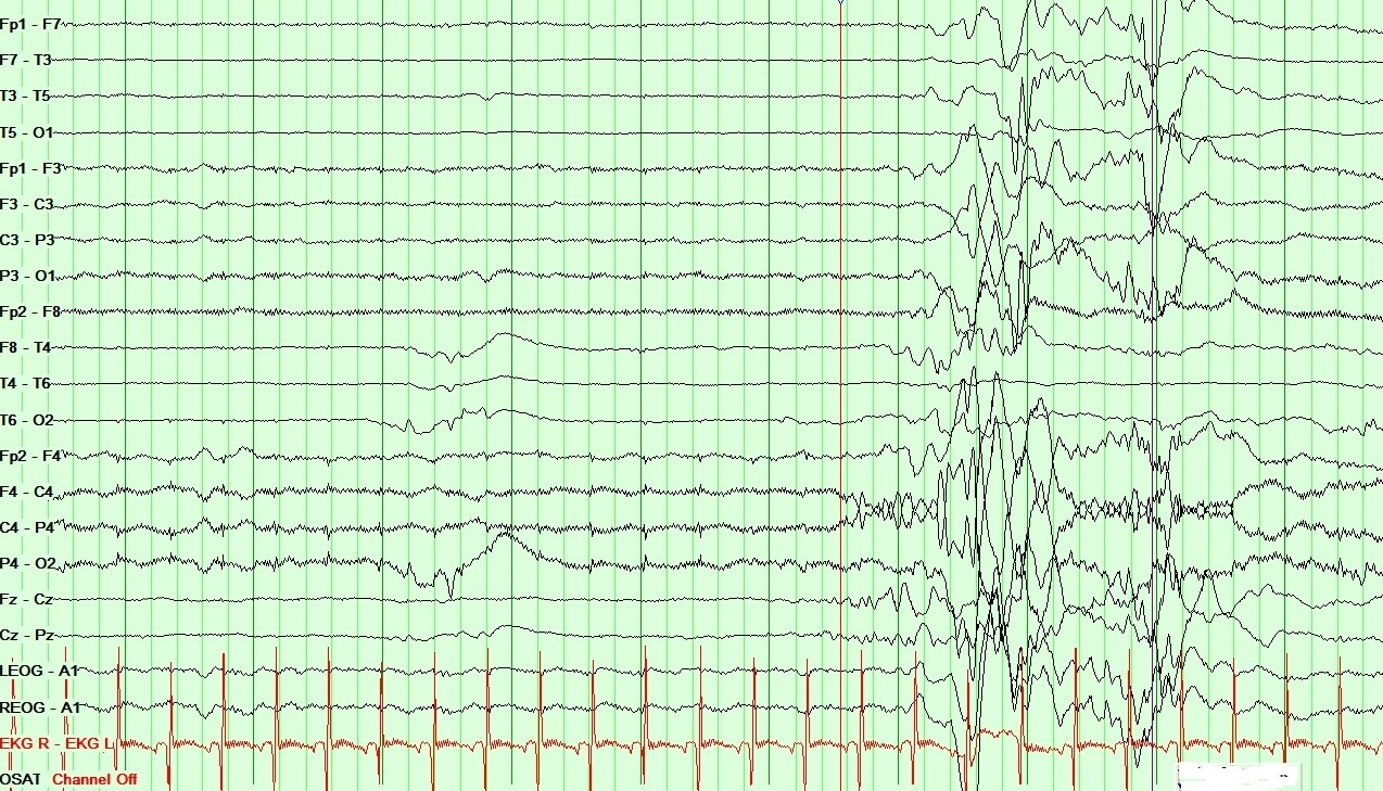 Neonatal EEG showing Burst Suppression pattern in Ohtahara syndrome