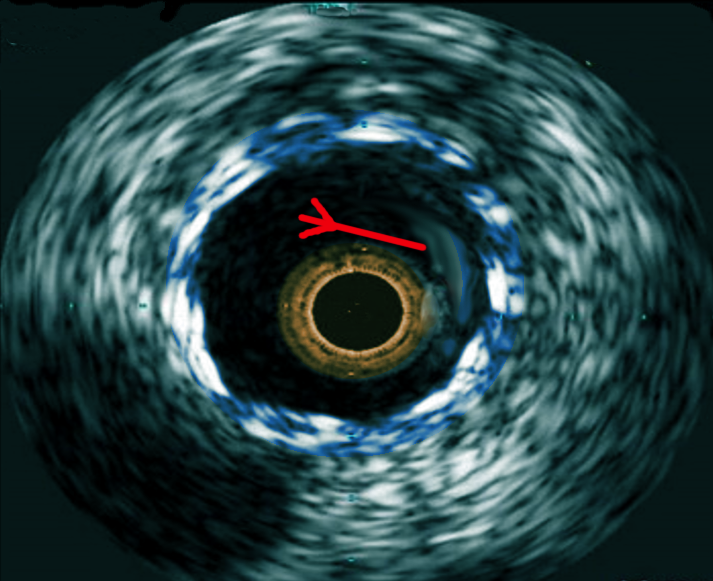 IVUS-in stent thrombosis