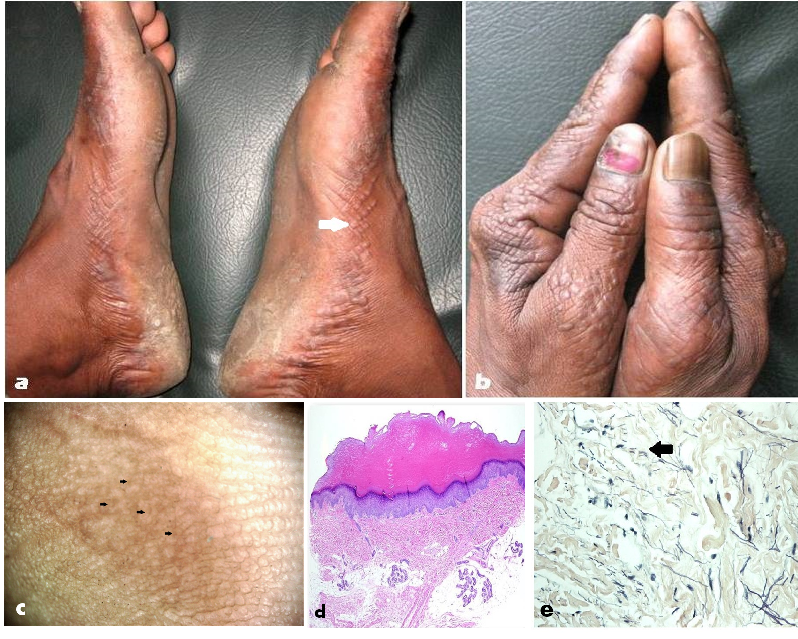 Fig 1 (a) Clinical Picture of Acrokeratoelastoidosis (AKE) of Costa involving the feet. Skin-colored keratotic papules clustered linearly along the medial margins of the feet, with easily appreciable umblication (white arrow) in many lesions; (b) Clinical Picture of Acrokeratoelastoidosis (AKE) of Costa involving the hands revealing similar lesions involving the dorsa as well (inverse papular acrokeratosis); (c) Dermoscopic image demonstrating focal clusters of pale-to-yellowish colored papules with slight umbilication (black arrows) in a few of them, interspersed with pale yellow-colored structureless areas [Escope videodermoscope, 20X, polarized); (d) Histopathology revealing hyperkeratosis, hypergranulosus, mild acanthosis, dermal collagen homogenization and elastorrhesis (fewer and fragmented elastic fibres) [Hematoxylin & Eosin, 400X]; and (e) Histopathology stained with Verhoeff's-Van Gieson (VVG) stain, revealing elastorrhexis (black arrow) more clearly [VVG, 400X].