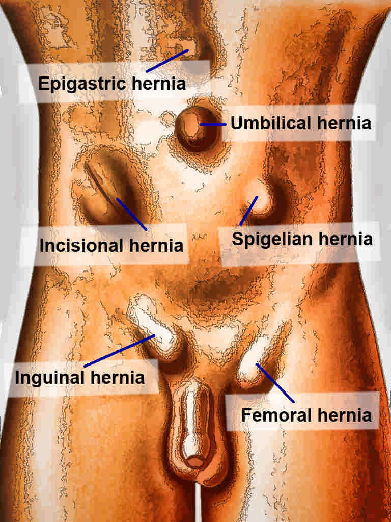 Femoral Hernia Article - StatPearls