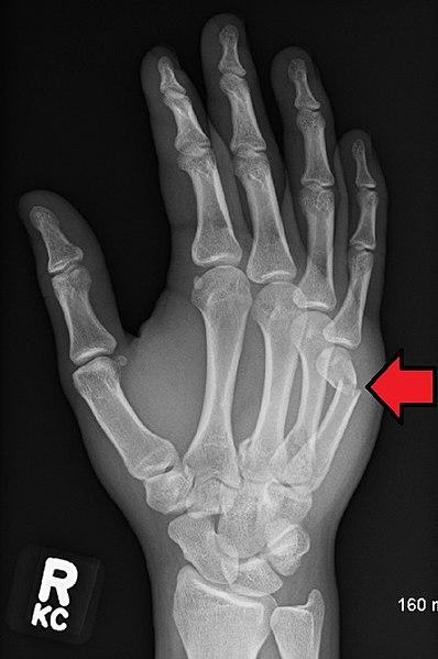 Fractured 5th metacarpal